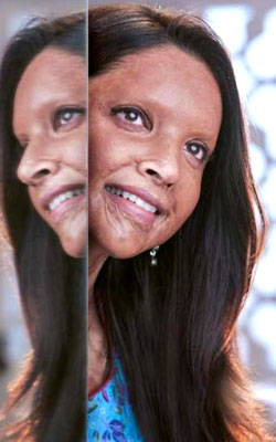 Chhapaak (hindi) - cast, music, director, release date